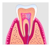 distinctive dental service root canal